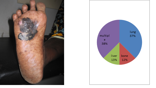 Figure 1. Plantar melanoma Figure 2. Different locations of metastases