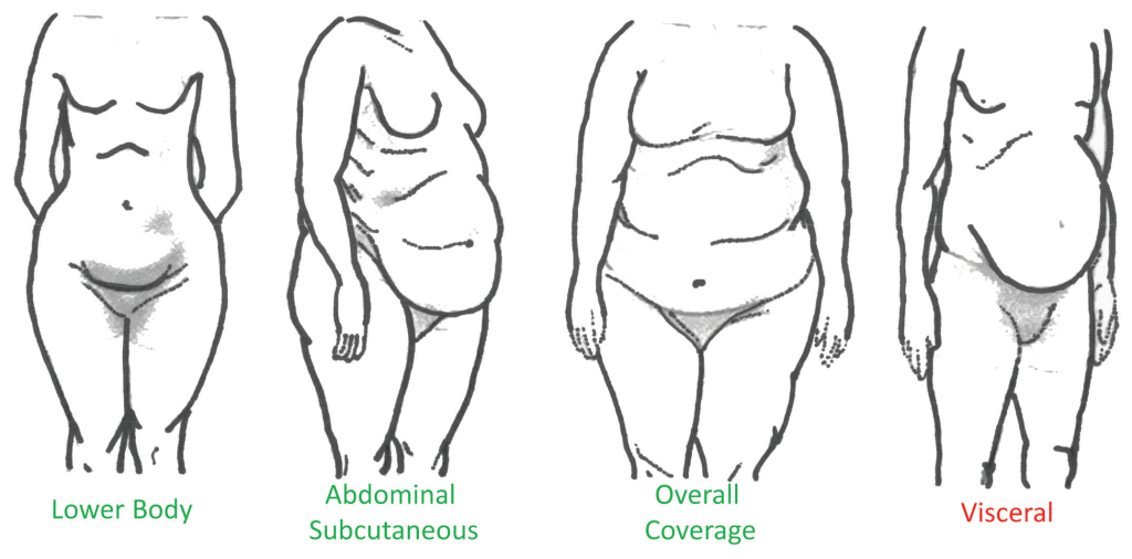 Figure 1. Types of body fat mass distribution [15]