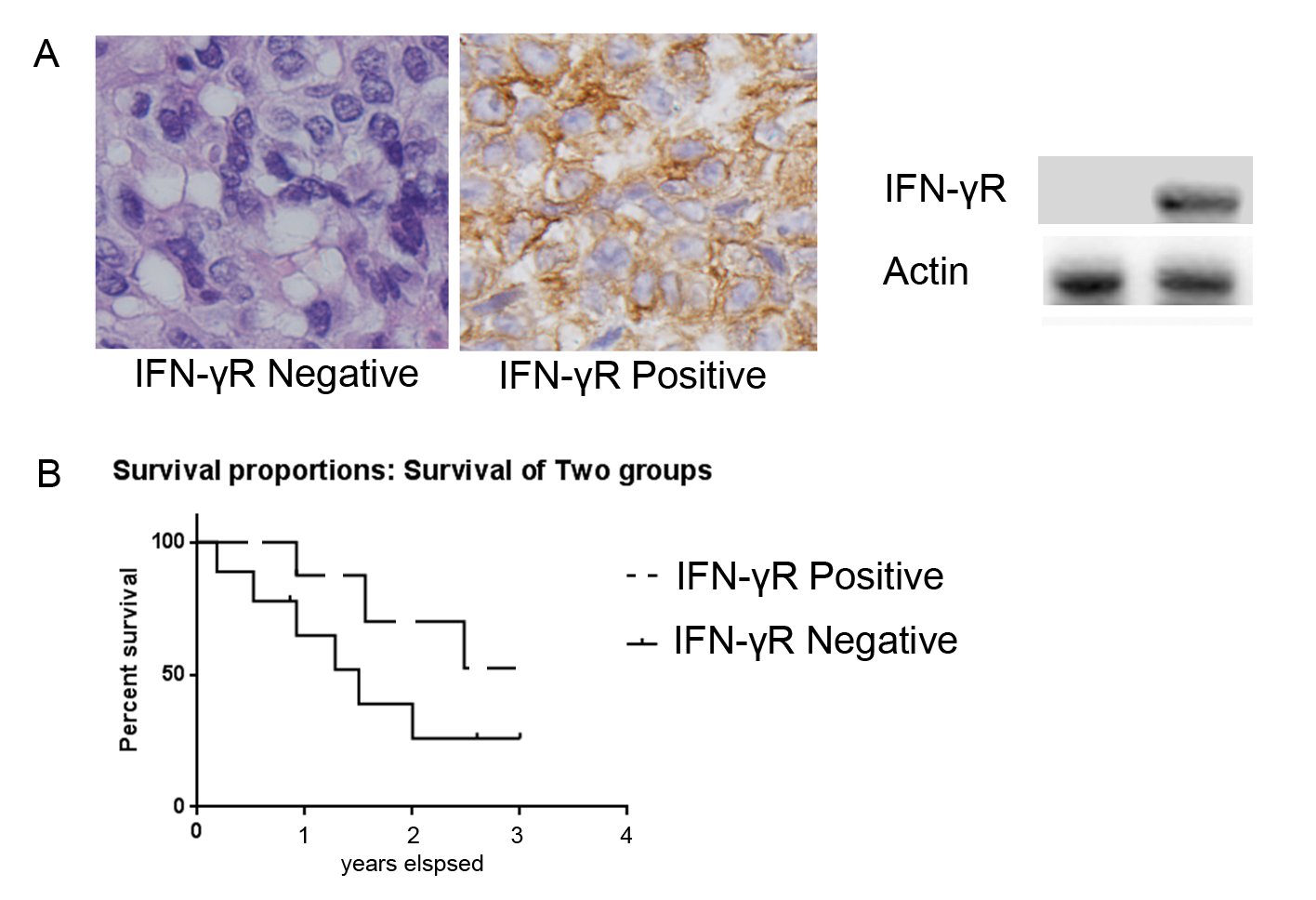 Figure 1. Representative IFN-γR immunostaining in NPC and effects of IFN-γR expression on patient's survival. A: IFN-γR expression is positive in some patients and negative positive in others. B: In the patients that received concurrent chemotherapy with radiation therapy (55 out of 70), the survival rate of patients with low IFN-γR expression was significantly higher than that of patients with high IFN-γR expression (p = 0.001).