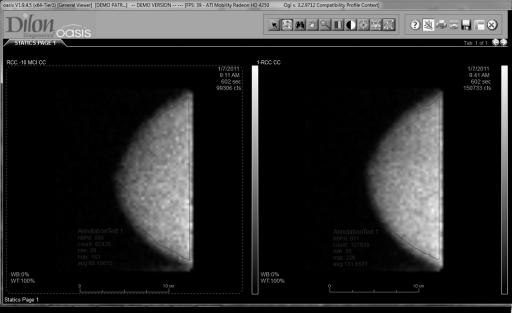 Figure1. Examples of breast images taken at a low dose and at the normal dose showing the regions used to determine the average count density in each.  The total counts in the region and the number of pixels in the region were used to calculate the average count/pixel value.