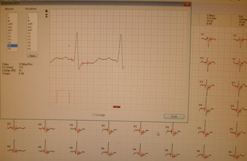 Figure n°1: Dépistage de l'ischémie myocardique silencieuse chez les diabétiques suivis è Parakou en 2014 : Sous décalage du segment ST à l'effort chez un sujet de 64ans.