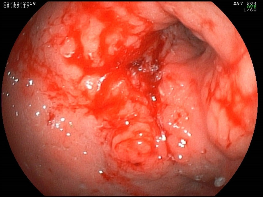 Figure 1. Endoscopic picture of a circular infiltrative tumor of the antral and stomach body with ulceration.