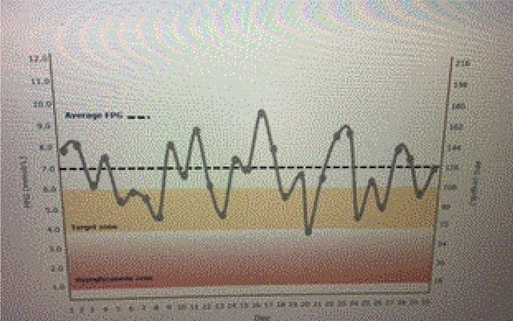 EDMJ2017-116-JeffUngerUSA_F1